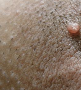causes of ingrown hair cyst