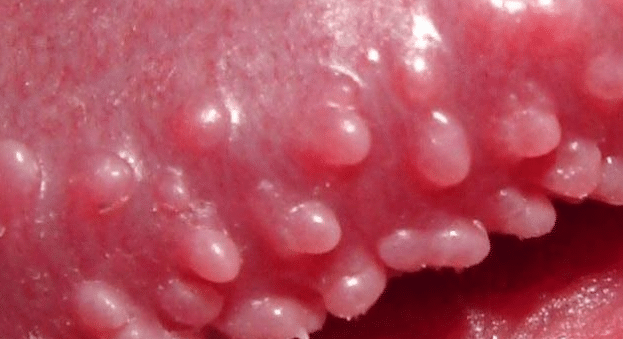 Penile Bumps Causes, Shaft, Head, Not STD, Pictures, Itchy