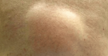 Sore lump in armpit male - Doctor answers on HealthTap