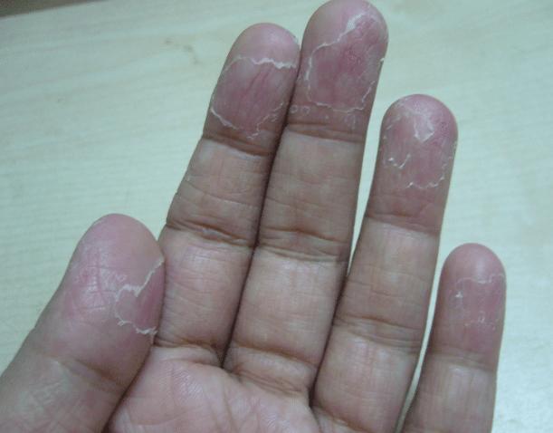 Peeling Fingertips Causes Near Nails Vitamin For No Reason Hands