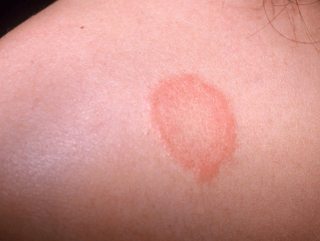 Red Spots On Skin Not Itchy Tiny Pictures Petechiae