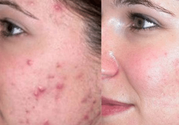 How to get rid of pimple mars