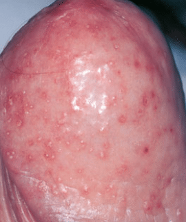 Obviously Red spots on penis head