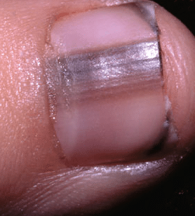 lines on nails