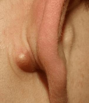 cyst like lump behind ear