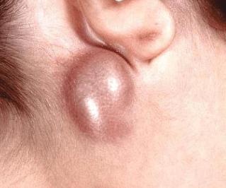 hard lump behind ear