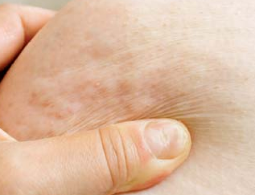 Lumps under Skin Causes, Hard, all over Body, on inner Thigh, Painful, Get Rid, Treat, Pictures