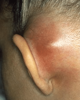 painful lump behind earlobe