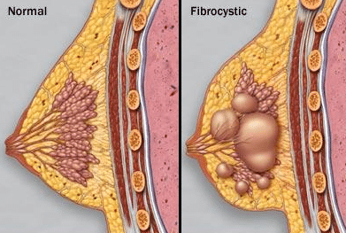 painful lump in breast fibrocystic