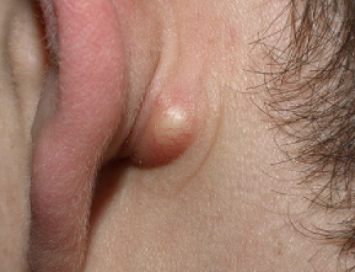 Lump behind Ear on Bone, Lymph Nod, Pea Sized, Lobe, Hard, Painful, Pictures, Causes, Treatment