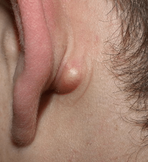 pea sized lump behind the ear