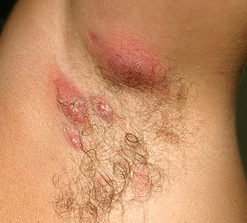pimple like cyst in armpit painful