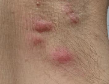 pimples or bumps under armpit
