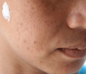 does toothpaste remove pimples