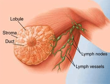what is the painful lump in breast