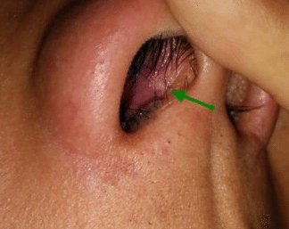 Scabs in Nose Causes, Treatment, Remedy, Pictures, Wont go Away