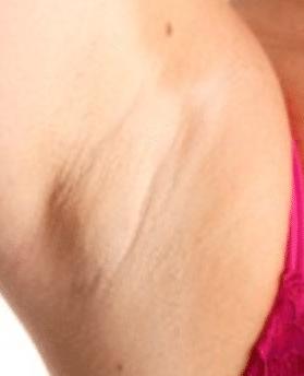 what causes lumps under armpit