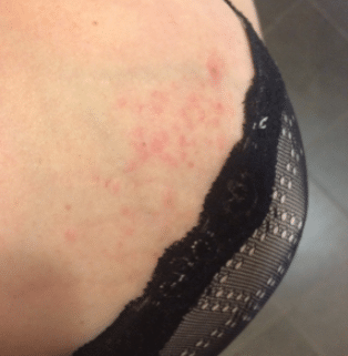 rash on breast