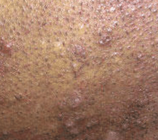 Tag How To Get Rid Of Shaving Bumps On Private Part Waldon Protese
