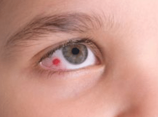 red spot on eye picture