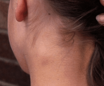symptoms of a neck cyst