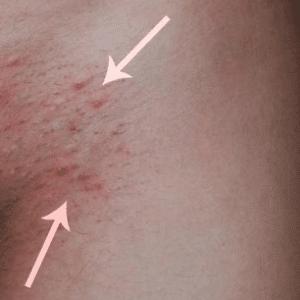 Razor burn vs herpes symptoms
