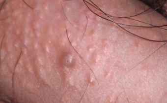 Pimple on shaft