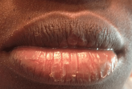 Severely cracked lips